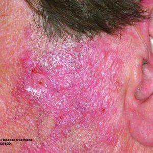 Lupus disease treatment