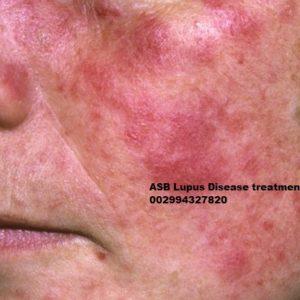Lupus treatment